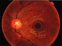 正常な網膜