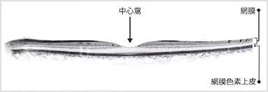 網膜断層検査(OCT)
